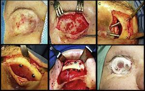 Etapas del protocolo quirúrgico.