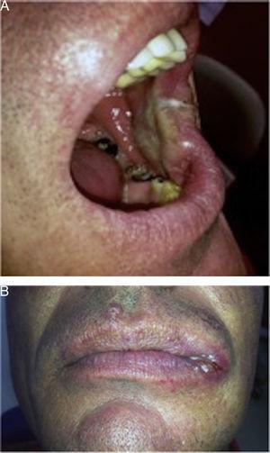 Lesión clínica en mucosa yugal (A) y Comisura izquierda (B).