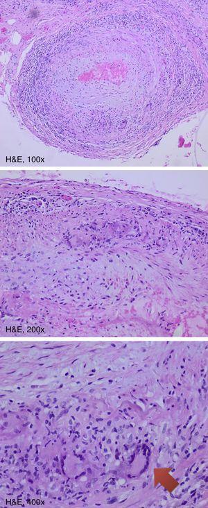 Biopsia arteria temporal positiva, con infiltrado de células mononucleadas y células gigantes (flecha).