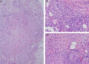 Estudio histopatológico. Se muestra la presencia de granulomas de centro necrótico de forma estrellada o geográfica, constituidos por células epitelioides dispuestas en empalizada y entremezcladas con linfocitos, así como un infiltrado de neutrófilos (A). Se asocia además un infiltrado inflamatorio constituido fundamentalmente por linfocitos dispuestos en torno a vasos de pequeño y mediano calibre en ocasiones penetrando su pared y alcanzando las células endoteliales, sin presencia de necrosis fibrinoide (B y C), que son sugestivos de lesiones de granulomatosis con poliangeitis (granulomatosis de Wegener).