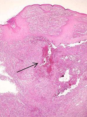 Histopatología: presencia de cuerpo extraño vegetal (tinción de hematoxilina-eosina, 200×).
