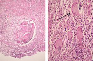 Granuloma supurativo y células gigantes multinucleadas (tinción de hematoxilina-eosina, 200×).