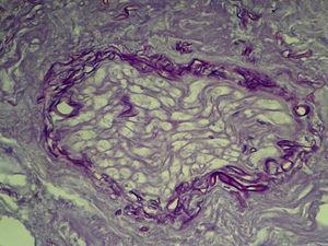 Detalle de la infiltración perineural (PAS×400).