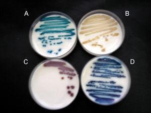 Color y aspecto de las colonias de levaduras en medio Brilliance Candida Agar (Oxoid) A) Candida albicans. B) Candida parapsilosis. C) Saccharomyces cerevisiae. D) Candida tropicalis.
