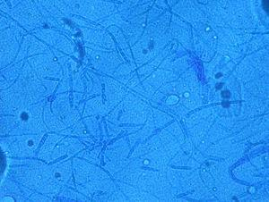 Thick walled multicellular structures. Four months old culture in SDA. Lactophenol–Cotton Blue mount, 400×.