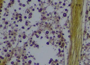 Tissue sections showing the infiltration of the optic chiasm by Cryptococcus. Mucicarmine stain ×400.