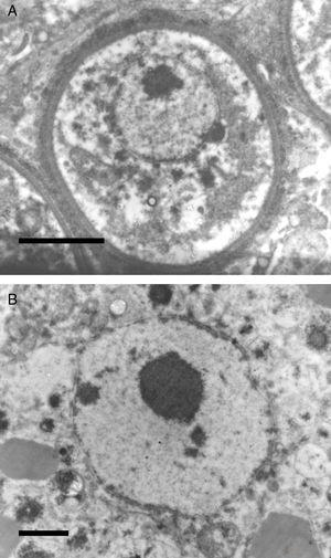 The electromicrograph in panel A shows an enlargement of a juvenile sporangium with a typical nucleus and a prominent nucleolus (Bar=8.0(μm). Note the nuclear membrane surrounding R. seeberi's chromatin. Details of the nuclear membrane and the nucleolus can be observed in panel B (Bar=2.0(μm). In this EM close up the presence of several vesicles is also observed around the nucleus. Panels A and B and Figs. 2 and 3 (this review) give details on the typical morphological features of R. seeberi nuclei and establish without doubt that R. seeberi is a true eukaryote microbe.
