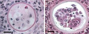 Panels A (Bar=10(μm) and B (Bar=10(μm) show two different histological sections stained with H&E depicting dead sporangia of R. seeberi invaded by the host's inflammatory cells. The dead sporangia in panels A and B are commonly found in histological preparations. The nuclei observed inside the dead sporangia are indistinguishable from the nuclei of the host's inflammatory cells found around these sporangia (Panels A and B) and different to the R. seeberi's nuclei depicted in Fig. 3. The figure shows that R. seeberi nuclear morphological features can be properly differentiated from that of the host's own nuclei.