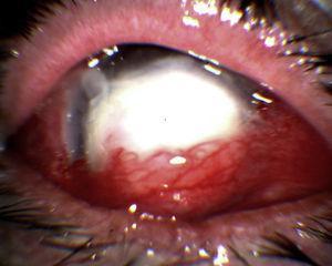 Úlcera corneal grave con recubrimiento conjuntival.