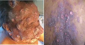 Clinical images of the patient showing reddish-violaceous nodules and tumors with scales on face and scalp (left). Ill-defined violaceous plaques with ulcerations on the back (right).