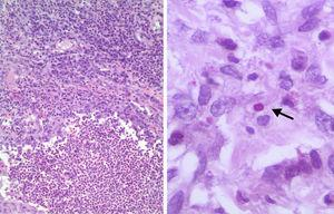 Suppurative granuloma with central microabscesses composed of neutrophils surrounded by epithelioid cells, and a peripheral zone infiltrated by lymphoid and plasma cells (hematoxylin-eosin stain, 100×) (left). An oval body (4μm in diameter) with a lighter center and darker stain at the periphery is seen, suggestive of Sporothrix yeast (PAS stain, 400×) (right).