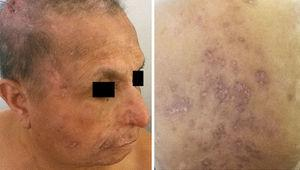 Clinical pictures of the patient after being treated with itraconazole. The improvement is evident, although hyper and hypopigmented areas with atrophic scars remained on the affected areas.