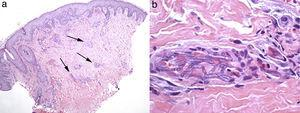 Skin biopsy of patient 2. (a) Low power image of skin biopsy showing patchy inflammatory infiltrates in the dermis, and (b) high power image of a cutaneous artery showing intraluminal accumulations of Fusarium solani species complex hyphae.