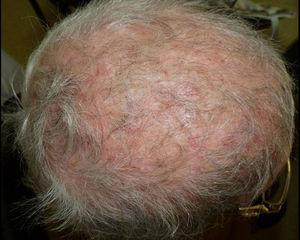 Tinea capitis in a postmenopausal woman with systemic lupus erythematosus treated with immunosuppressive drugs. Scarring alopecia and secondary infection due to T. tonsurans were diagnosed.