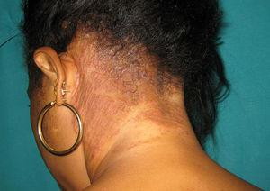 Tinea capitis in a HIV-positive premenopausal woman from Senegal.