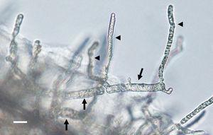 The figure depicts the development of articulate and disarticulated sporangia (arrows) of Lagenidium ajelloi on a grass blade in induction medium showing the formation of slender discharge tubes (arrow heads). The development of exit tubes from elongate sporangia (arrow heads) gives rise to vesicles at the tip of the each exit tube, as shown in Fig. 3 (Bar=40μm). L. albertoi and L. vilelae developed also similar sporangia structures in induction medium before zoospore formation.