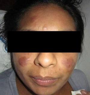 Lesiones dermoepidérmicas en placa, infiltrativas en las regiones malar y frontal.