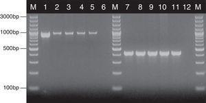 Detection of genes encoding HWP1 protein and the ITS region, by PCR method among selected C. albicans and C. glabrata isolates from ICU. Lane M: 100-bp molecular size marker (Thermo Fisher Scientific, Waltham, Massachusetts, USA); lane 1: C. albicans ATCC 90028; clinical C. albicans strains in lane 2: CA1; lane 3: CA22; lane 4: CA39; lane 5: CA48. Lane 7: C. glabrata ATCC 2001; clinical C. glabrata strains in lane 8: CG1; lane 9: CG12; lane 10: CG24; lane 11: CG31. Lanes 6 and 12: negative controls.