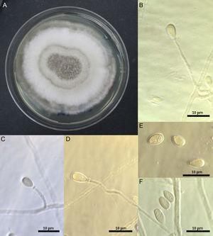 (A–D) Scedosporium dehoogii, ChFC 151. (A) Colony growing on PDA after 14 days at 25°C. (B–D) Conidiogenous cells and conidia. (E, F) Conidia.