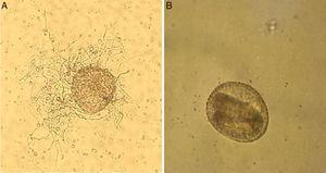 Toxocara canis eggs before administration to the experimental animals. (A) T. canis egg colonized by Trichoderma virens hyphae after culturing in minimal medium at 25°C/15 days. (B) Non-fungus exposed embryonated T. canis egg (40×).
