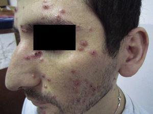 Paciente con lesiones cutáneas papulocostrosas en el rostro.