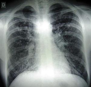 Radiografía de tórax donde se observan imágenes intersticiales y micronodulillares.