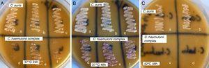 Plates of CHROMagar Candida supplemented with Pal's medium showing confluent growth of white colored colonies of C. auris (a, b and c) and poor growth of light pink colored colonies C. haemulonii var. vulnera (d), C. duobushaemulonii (e) and C. haemulonii (f) after incubation at (A) 37°C for 24h, (B) 37°C for 48h and (C) white colored colonies of C. auris (a, b) and no growth of C. duobushaemulonii (c) and C. haemulonii (d) after incubation at 42°C for 48h.