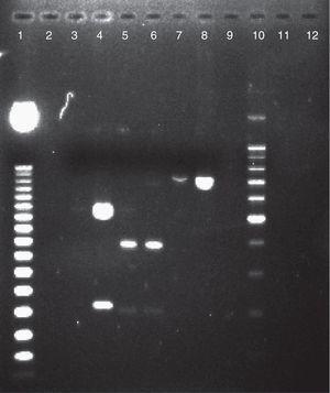 Electroforesis en gel de agarosa al 2% de productos de PCR-SADH digeridos por la enzima de restricción BanI, para la caracterización de las especies del CCP. Calle 1: marcador de peso molecular de 50pb. Calle 2: agua libre de nucleasas. Calle 3: Candida tropicalis ATCC 66029. Calle 4: C.parapsilosis ATCC 22019 (550 y 200pb). Calle 5: aislamiento de C.metapsilosis (400pb). Calle 6: C. metapsilosis ATCC 96144 (400pb). Calle 7: aislamiento de C. orthopsilosis (750pb). Calle 8: C. orthopsilosis ATCC 96139 (750pb). Calle 9: Candida tropicalis ATCC 66029. Calle 10: marcador de peso molecular 100pb. Calles 11 y 12: agua libre de nucleasas.