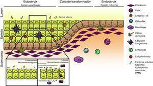 Respuesta inmune innata local en el tracto genital femenino. Esquema del tracto genital femenino que ilustra la ubicación de las diferentes poblaciones celulares. En condiciones de homeostasis el microambiente local se encuentra finamente regulado con concentraciones aumentadas de citocinas antiinflamatorias y péptidos antimicrobianos (PAM) de expresión constitutiva; Candida albicans se encuentra en su estado comensal. La ruptura de este estado de equilibrio debido a la presencia de factores predisponentes o defectos genéticos favorece la morfogénesis fúngica, la expresión de factores de virulencia y el establecimiento de la infección. La liberación de alarminas, PAM, sustancias quimiotácticas y citocinas generan un microambiente inflamatorio con infiltrado celular que, en su conjunto, determinan la aparición de los síntomas de la enfermedad.