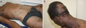 (a) Exfoliative erythroderma. (b) Diffuse non-scarring and circumscribed alopecia.