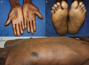 (a, b) Complete regression of palmoplantar hyperkeratosis. (c) Complete regression of exfoliative erythroderma.