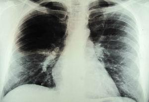 A chest X-ray revealing diffuse infiltrates that were predominantly located at the base of the right lung and perihilar nodules.