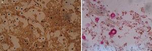 Microfotografías de la biopsia del nódulo coloreadas con Grocott (A) y mucicarmín (B) donde se observan elementos levaduriformes capsulados.