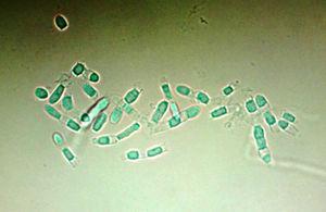 Aspecto micromorfológico del aislamiento donde se muestran clamidoartroconidios.
