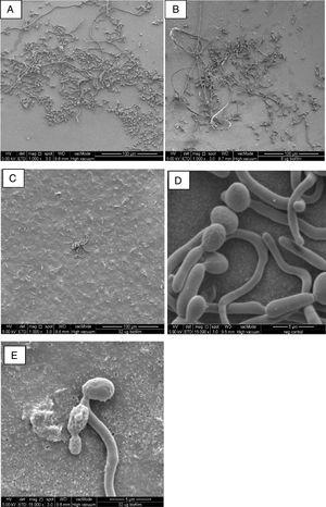 FESEM images of C. albicans biofilm cultures upon exposure to AbA for 2.5h. (A) Untreated biofilm culture (1000×); (B) biofilm culture treated with 8μg/ml AbA (1000×); (C) biofilm culture treated with 32μg/ml AbA (1000×); (D) untreated biofilm culture (15,000×); (E) biofilm culture treated with 32μg/ml AbA (15,000×).