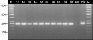 Detection of the Aspergillus gene fragment encoding the 18S rRNA subunit with the nested PCR technique. Lane: M, 100-bp molecular size marker (Thermo Scientific); 13–91, positive samples; NC, negative control; PC, positive control (Aspergillus fumigatus ATCC 14110).