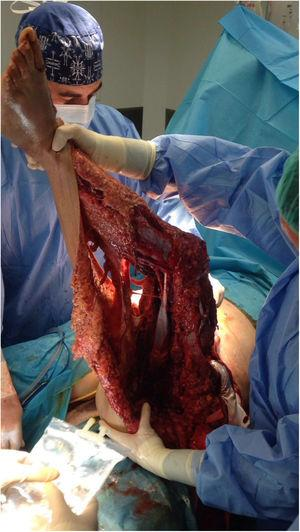 Paciente en el quirófano: estado de la pierna izquierda.
