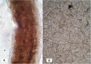 (A) Direct examination with KOH 10% of a hair with ectothrix parasitism (case 1); (B) multiple filaments in the scales (case 2).