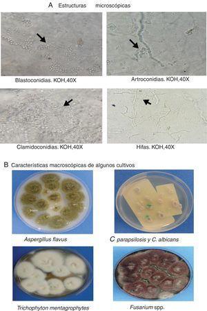 Hallazgos microbiológicos en algunos pacientes.