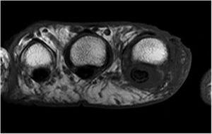 Resonancia magnética, secuencia axial, STIR. Engrosamiento y alteración de señal por edema de la piel y el tejido celular subcutáneo que rodea el segundo dedo, sobre todo la falange distal, con extensión hacia el tendón flexor, que muestra alteración de su señal y la presencia de líquido circundante.