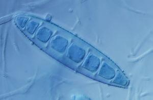 Macroconidium of Paraphyton cookei (formerly Microsporum cookei). This species does not produce ringworm, but it can be isolated from the fur of animals.