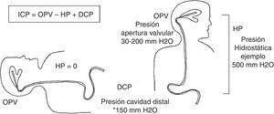Esquema representativo de las presiones (HP, hidrostática&#59; OPV, de apertura valvular, y DCP, de la cavidad distal) que actúan sobre la presión intracraneal (ICP) en posiciones decúbito y de pie. Ejemplo en paciente con estatura de 170cm (distancia de 50cm entre conducto auditivo externo y región umbilical). ICP=(OPV de 30 a 200 mmH20)–HP 500mmH2O+(DCP abdomen ≈150mmH2O*) ICP=claramente negativa en cualquier OPV (entre –150 y –320mmH2O). * Presión abdominal en posición de pie, estimada por Kajimoto et al.25.