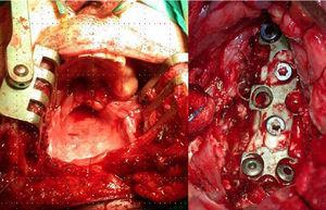 Segundo tiempo del caso mostrado en la figura. Izquierda: abordaje transmandibular, fotografía intraoperatoria. Centro: colocación de sustituto de cuerpo óseo, fotografía intraoperatoria.