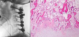 A) Imagen intraoperatoria de radiografía simple lateral de columna cervical, con el sistema de fijación. B) Imagen de afección de la lesión en la que se aprecian áreas de osificación encondral rodeadas de cartílago hialino (HE 100×).
