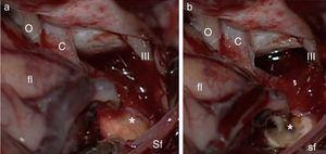 Intraoperative image: (a) swollen optic tract&#59; (b) after incising the optic tract the haematoma and tumour are seen (*=tumour&#59; o=optic nerve&#59; c=carotid artery&#59; III=third nerve&#59; fl=frontal lobe&#59; sf=silvian fissure).