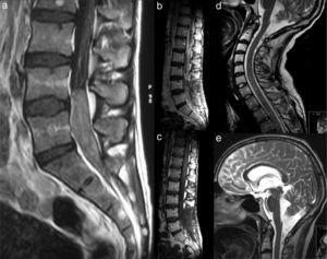 (a) T1-weighted magnetic resonance image (MRI) showing an intracanalar lesion with homogeneous enhancement with gadolinium. T1-weighted magnetic resonance images with (b) and without gadolinium (c) showing a larger mass and contrast enhancement of the dura mater extending several levels above the lesion. (d) Cervical syringomyelic cavity. (e) Dilatation of the cerebral ventricles.
