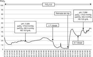 Gráfica de la monitorización intraoperatoria de la paciente. Obsérvese que tras el primer pinzamiento (clipaje) la PtiO2 desciende de forma brusca a umbrales por debajo de 10mmHg. Tras la retirada del clip los valores ascienden nuevamente, sin que se vean comprometidos tras el segundo pinzamiento del aneurisma. FiO2: fracción inspiratoria de oxígeno&#59; Hb: hemoglobina&#59; paCO2: presión arterial de dióxido de carbono&#59; paO2: presión arterial de oxígeno&#59; PtiO2: presión tisular de oxígeno.