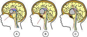 Cambios en el ángulo mamilar causados por craneofaringiomas con diferentes topografías. A: craneofaringioma intraventricular estricto&#59; el ángulo mamilar mantiene su valor normal agudo, de entre 30 y 60°, ya que el tumor crece dentro del tercer ventrículo sin empujar el suelo hasta que alcanza un tamaño grande. B: craneofaringioma infundibulotuberal o intraventricular no estricto&#59; el ángulo mamilar se hace más agudo, entre 10 y 30°, ya que el tumor crece dentro del suelo del tercer ventrículo y empuja progresivamente los cuerpos mamilares contra el tronco cerebral. C: craneofaringioma seudointraventricular&#59; el ángulo mamilar se hace más obtuso, entre 90 y 180°, ya que el tumor crece por debajo del suelo del tercer ventrículo, y este resulta empujado progresivamente en dirección craneal, contra los forámenes de Monro y las columnas de los fórnices.