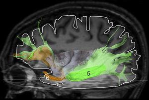 Reconstrucción mediante tractografía por tensor de difusión del fascículo fronto-occipital inferior (5) y del fascículo uncinado (6) en un hemisferio izquierdo.