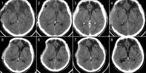 A 66 years old man suffered a moderate TBI during sport practice, and had to be operated to evacuate a subdural hemorrhage. The bone flap was not replaced due to intraoperative brain swelling (1: 2 months after decompressive craniectomy.). After 3 months the patient reached a complete recovery, and the bone flap was replaced (this event is previous to the present study) (2: CT scan two days after cranioplasty.). After 10 months, he presented with a chronic bone flap infection, so it had to be removed (3: infection of the bone flap.). After the removal, the patient progressively worsened, developing a sunken skin flap, progressive contralateral hemiparesis, and in the CT scan a contralateral deviation of the midline was patent (4: Two days after removal of the infected bone. 5: Two months after removal of the bone flap. 6: Patient becomes symptomatic after three months from the removal of the bone flap. Midline deviation is patent.). The patient was kept supine thereafter, and he presented both clinical and radiological improvement (7: CT scan after 2 days of recumbency). When the infection was resolved, a PEEK cranioplasty was implanted (8: CT scan 2 months after the PEEK cranioplasty). The patient made a complete recovery afterwards.
